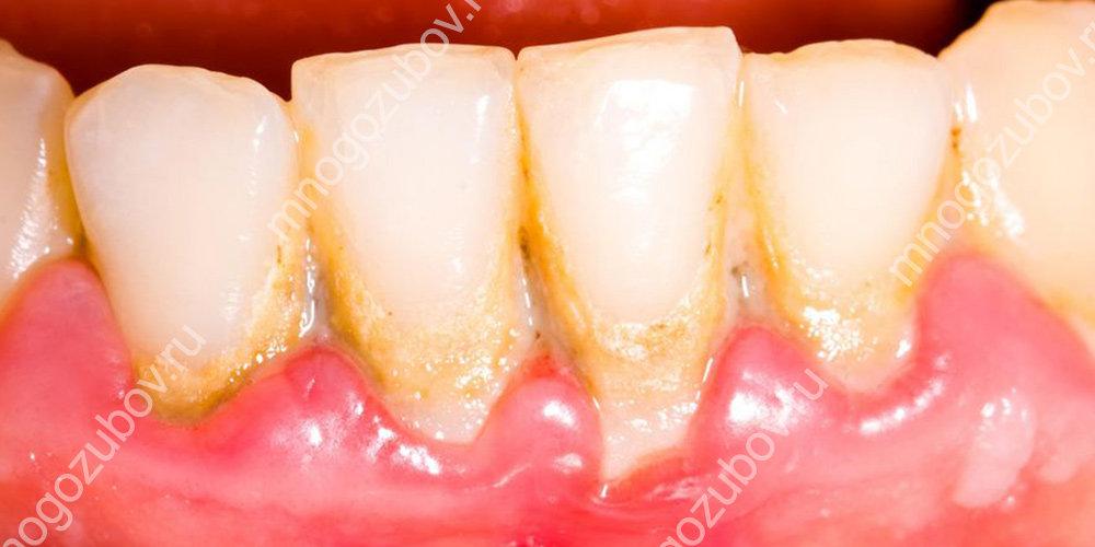 Пример наддесневого зубного камня