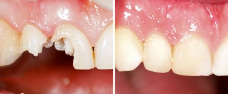 восстановление коронковой части зуба