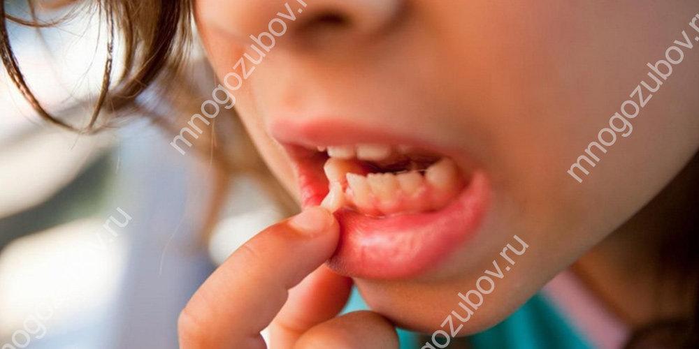 Подвижность зубов у ребенка