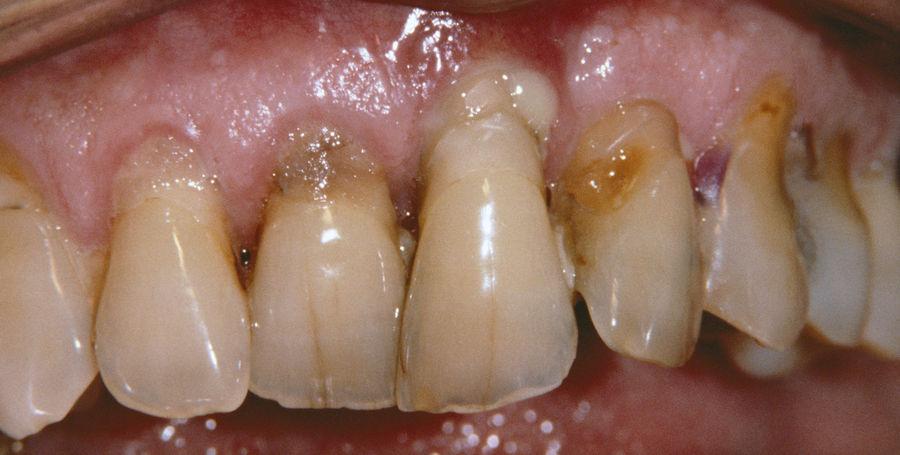 Развитие пародонтоза может привести к потере зубов