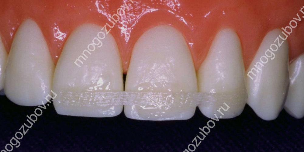 Фиксация зубов при помощи шинирования
