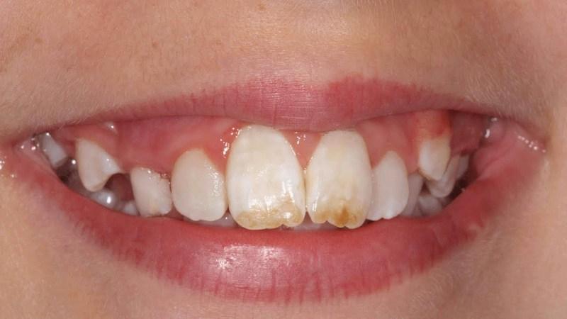 Как выглядит флюороз зубов