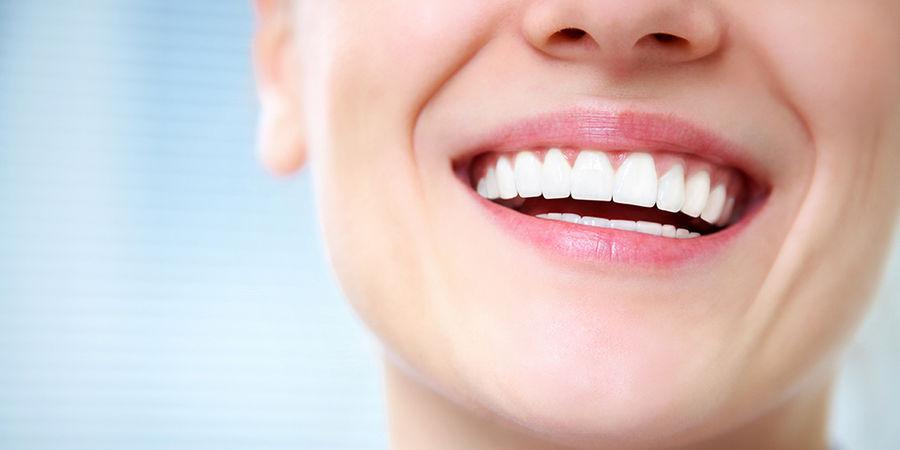 Отбеливание зубов чем лучше