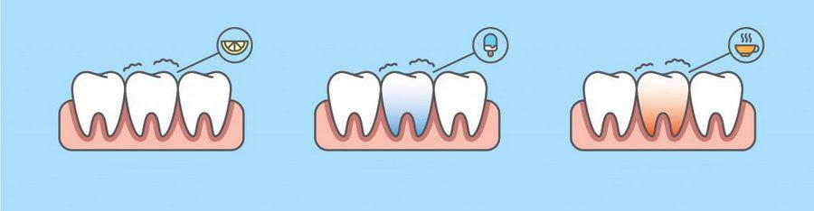 Возможные причины гиперстезии зубов