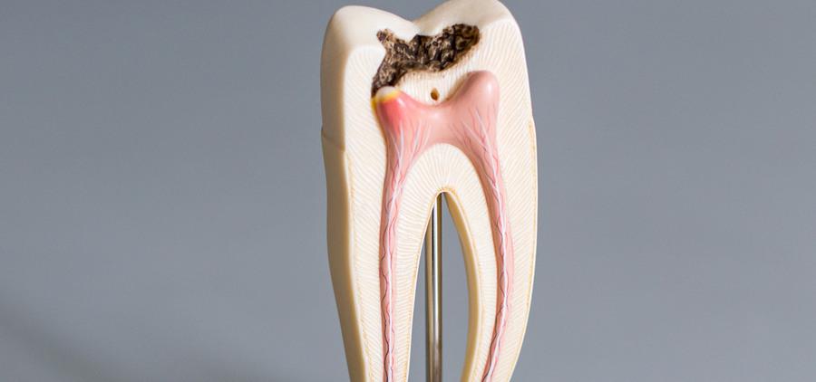 Возможные причины к депульпации зубов
