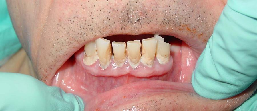 Фотография пародонтоза на нижней челюсти