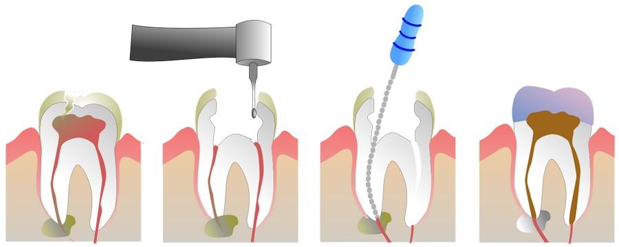 Болит зуб после лечения пульпита при накусывании