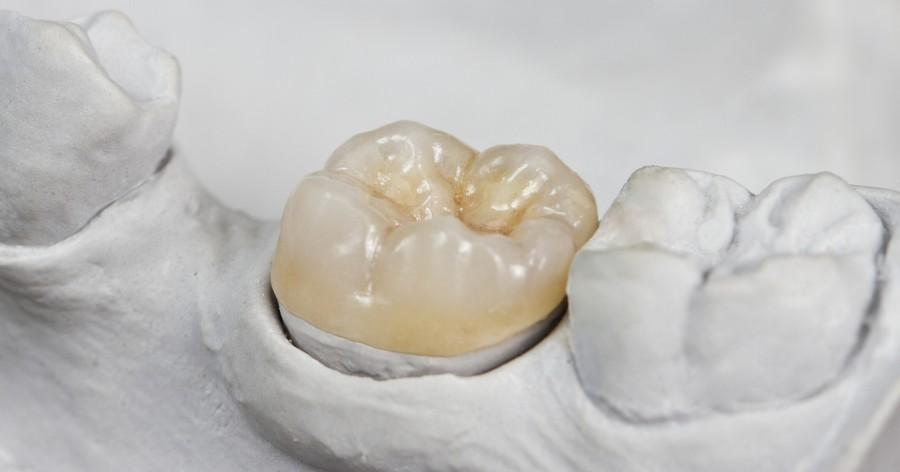 Установка зубной коронки на вылеченный зуб