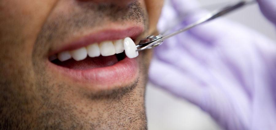 Виниры для лечения гиперстезии зубов