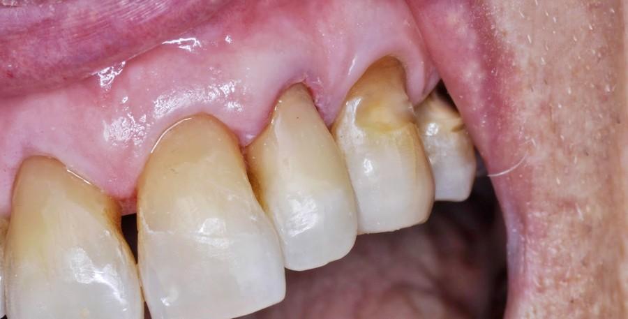 Фото: клиновидный дефект на верхних зубах