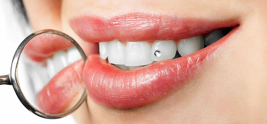Установка скайса на зубы