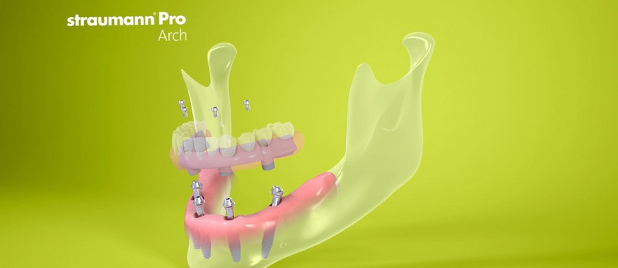 Имплантация Straumann Pro Arch