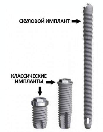 Сравнение классических и скуловых имплантов