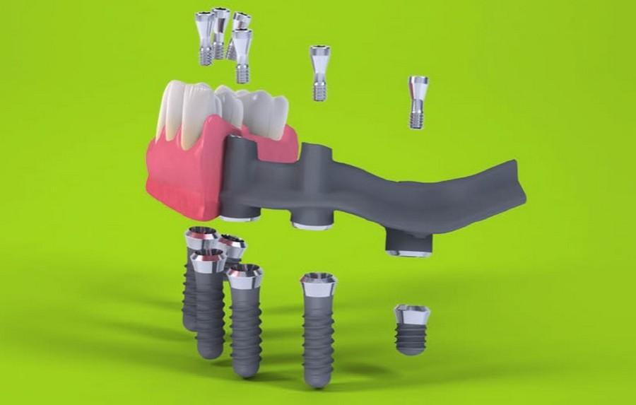 Восстановление зубов Straumann Pro Arch TL