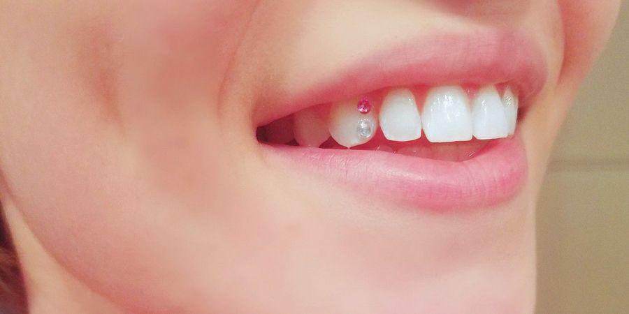 уход за украшениями на зубах