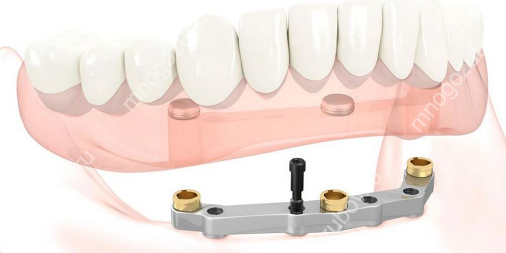 Фиксация зубного протеза на 3х имплантатах