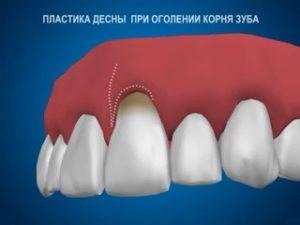 Фото: Зубные корни оголены