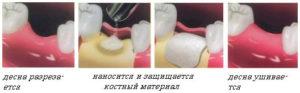 Фото: Этапы операции