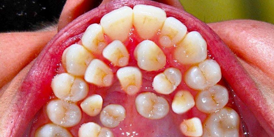 Что такое гипердонтия