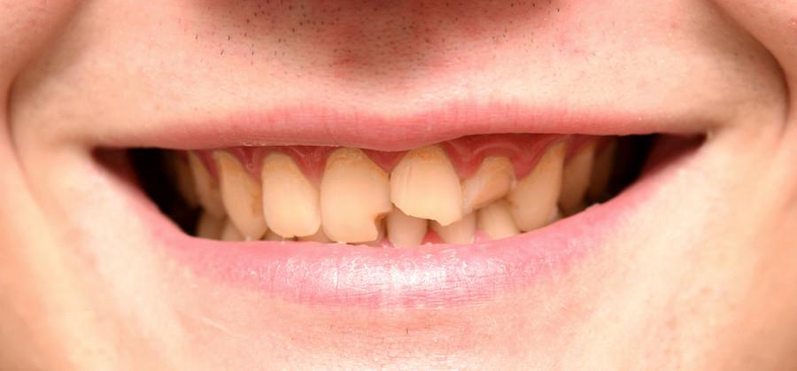 Что делать если у подростка взрослых почему крошатся передние зубы причины что делать как укрепить чтобы не крошение лечение