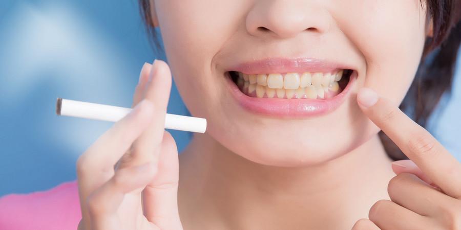 От чего желтеют зубы у взрослых