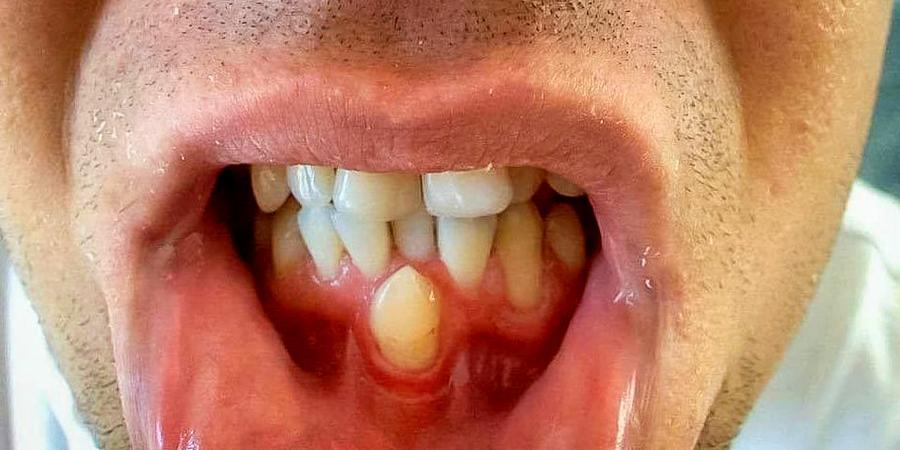 Почему может развиваться гипердонтия