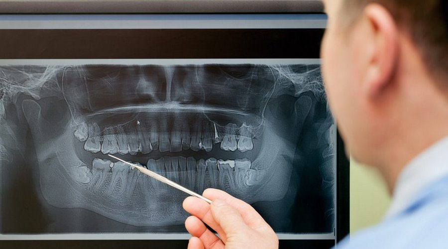 методы рентген диагностики