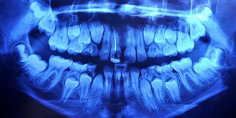 Диагностика развития гипердонтии
