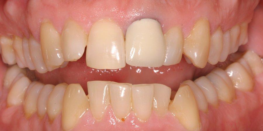 Нарушение технологии установки зубной коронки