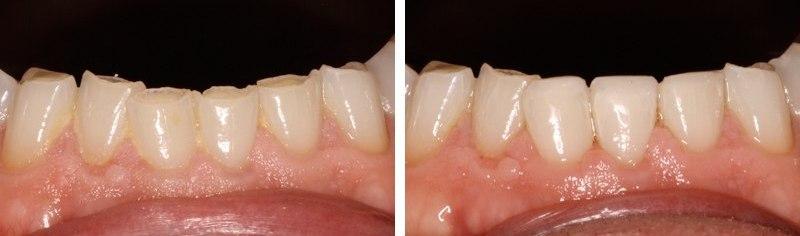 До и после лечения стертых зубов