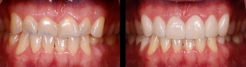 Лечение стираемости зубов винирами