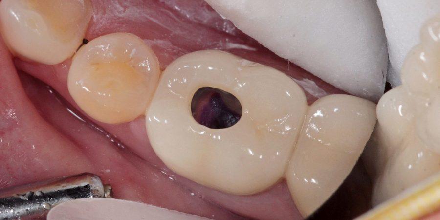 Лечение зуба сквозь коронку