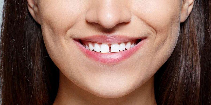 Щель между передними зубами: как исправить и убрать дырку