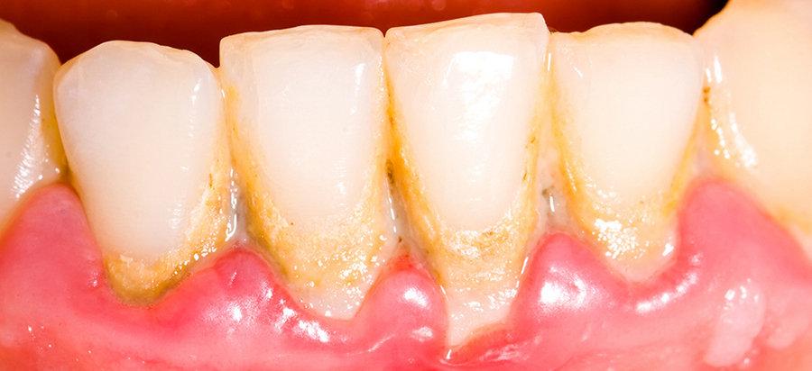 отложение на зубах