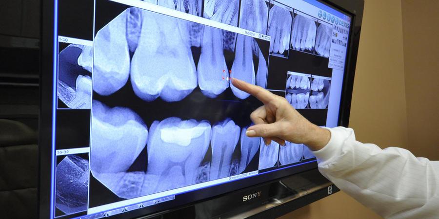 рентгенография в стоматологии