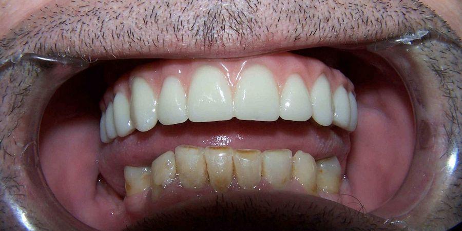 протезирование верхней челюсти на имплантах
