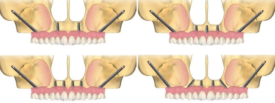виды скуловой имплантации