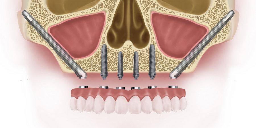 скуловая имплантацция