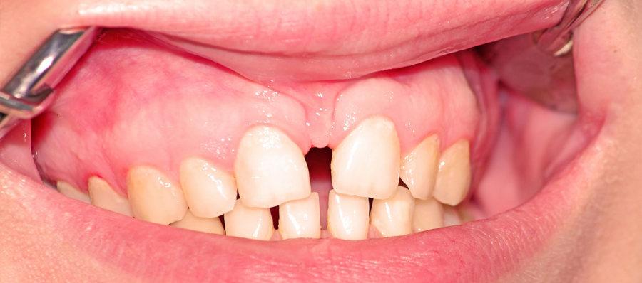 увеличение щели между передними зубами