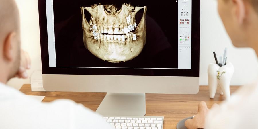 программы для имплантации зубов