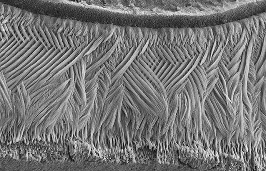 зубная эмаль под микроскопом