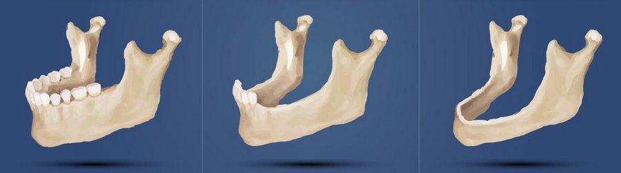процесс атрофии костной ткани