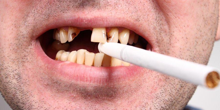 курение и заболевания зубов