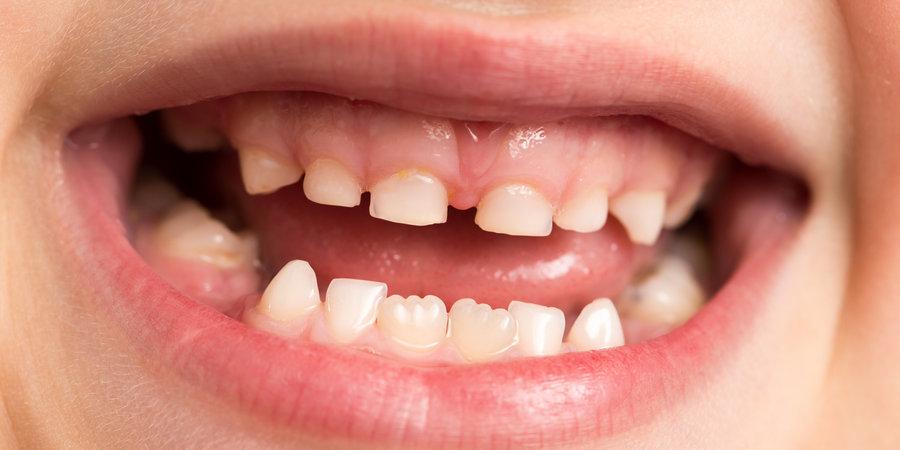 прорезавшиеся молочные зубы