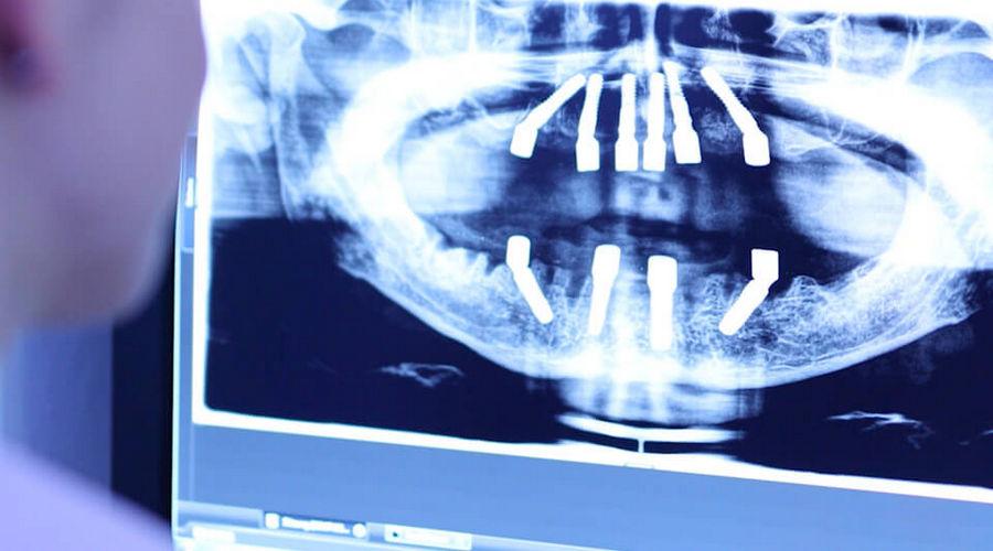 3d при имплантации с немедленной нагрузкой