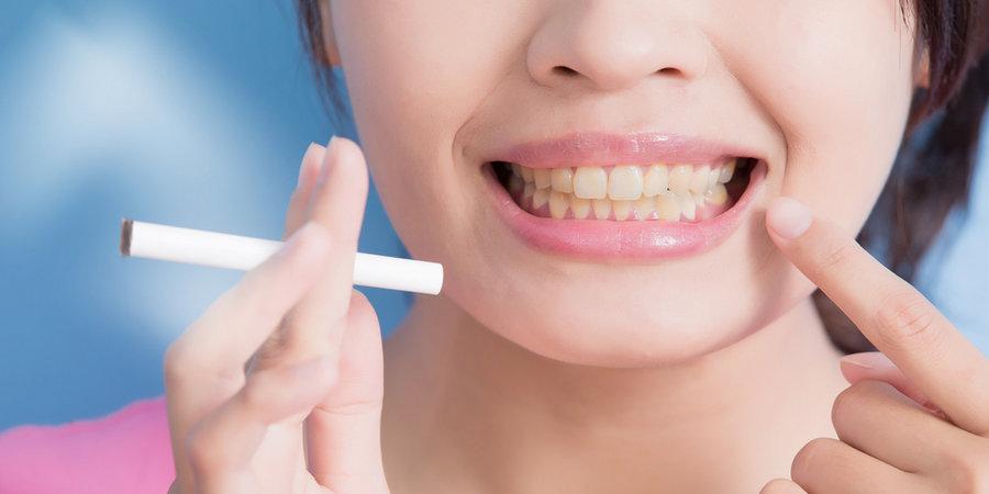 курение и зубные импланты