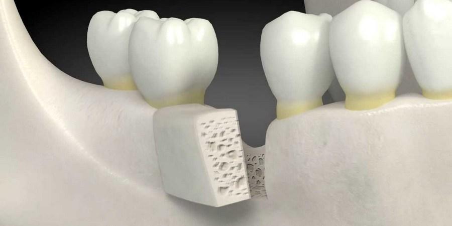 наращивание костной ткани блоками