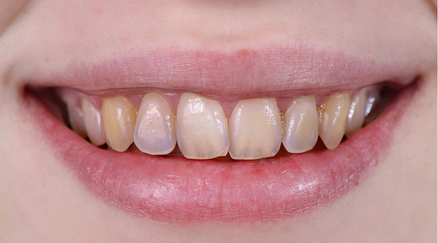 испорченая зубная эмаль