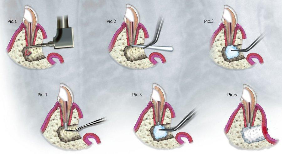 этапы резекции верхушки корня зуба