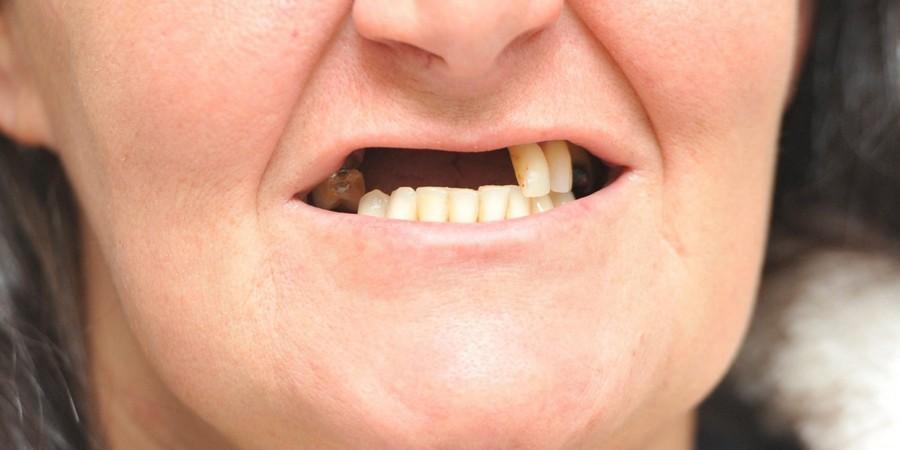Особенности отсутствия зубов